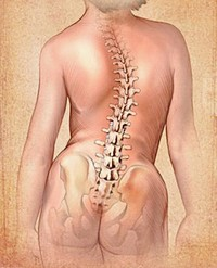 What Is Dextroconvex Scoliosis?